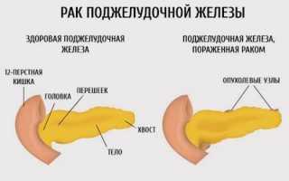 Каковы симптомы рака поджелудочной железы