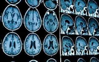 Как проводят мрт головного мозга с контрастом