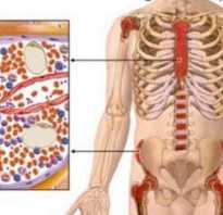 Что такое лейкемия
