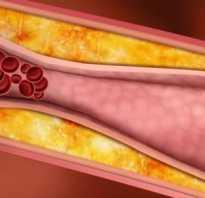 Какой уровень холестерина считается высоким