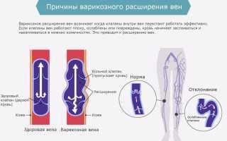 Почему чешутся вены на ногах при варикозе