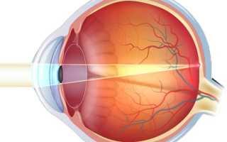 Какие симптомы катаракты